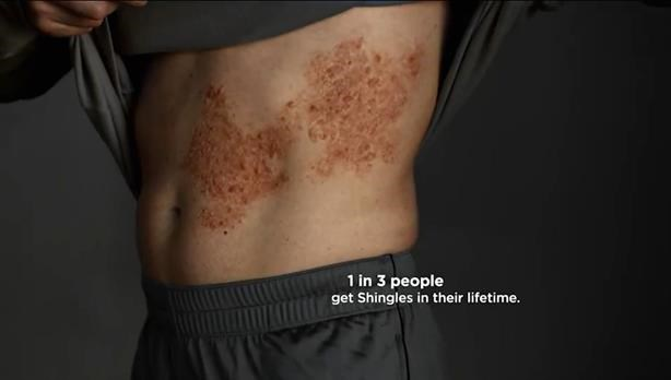 Merck campaign shows impact of shingles