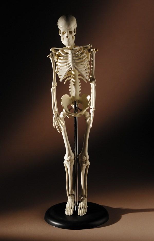 "Merck boasts bone drug trials show ""robust efficacy"""