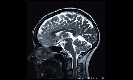 As ADHD climbs, diagnostics mount