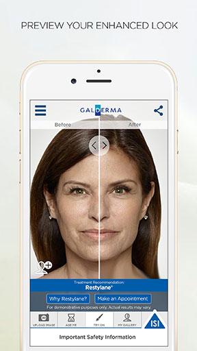 IOMEDIA's patient app for Galderma's Restylane