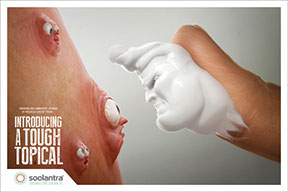 McCann Echo took on rosacea with its ad for Soolantra (ivermectin)